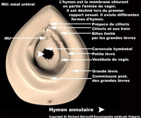 image photo hymen annulaire gynecologie obstetrique