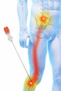 Resume Clinic Lumbar Selective Nerve Root Blocks Back Clinic