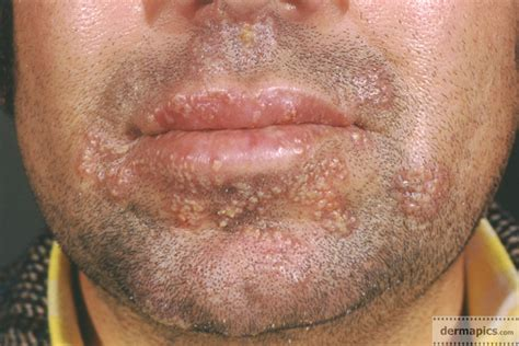 Herpes Simplex First Symptoms, Is There A Cure For Herpes