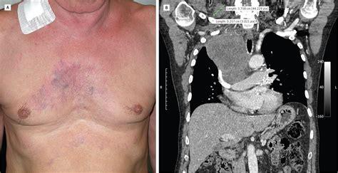 edema and telangiectasia neuroendocrine carcinoma cardiology jama dermatology the jama network