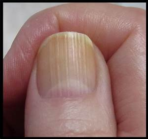 Treatment, Home Remedies, Causes Symptoms