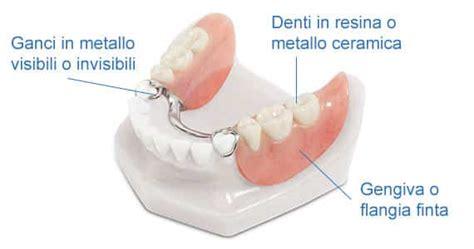 costo protesi mobile protesi dentale scheletrata dentista implantologia prezzi