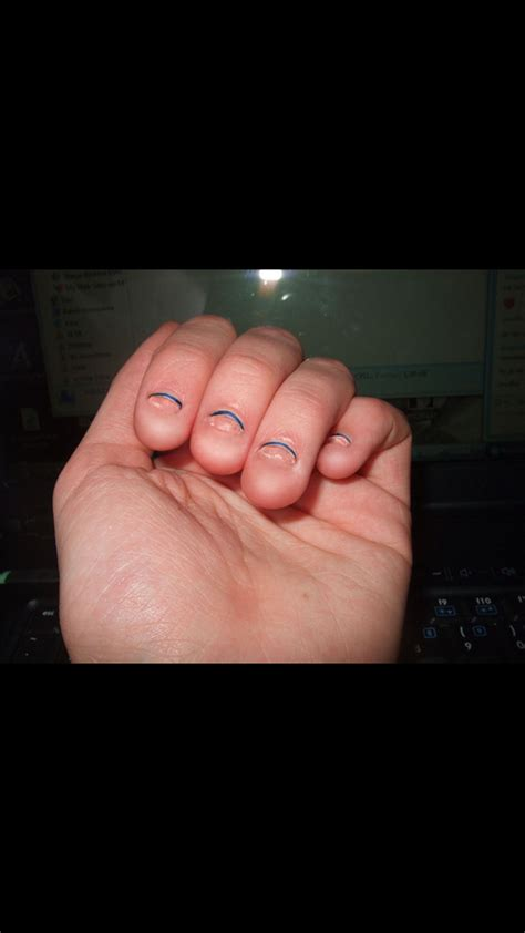 abgekaute finger und fussnaegel fingernaegel kauen