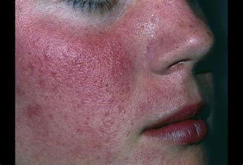 Rosacea Images Rosacea And Menopause Related Keywords Rosacea And