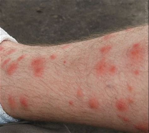 chiggers jiggers red bugs treatment how to get rid of