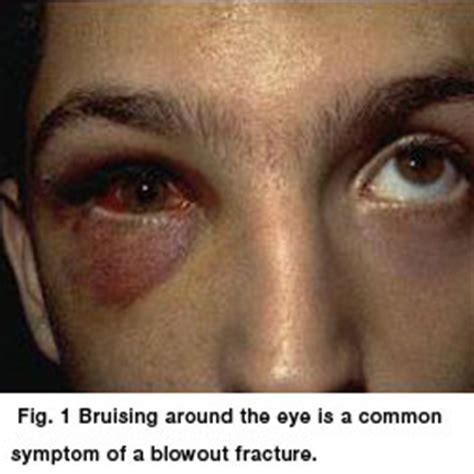 Orbital Floor Fracture Symptoms blowout fracture aapos
