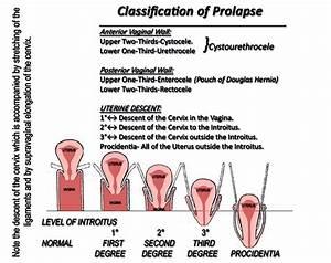 Grading A Prolapse
