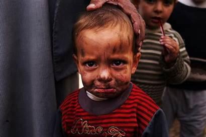 Syria War Refugees Crisis Face Children Child