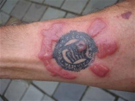Tatuaggi E Reazioni Allergiche, A Quali Colori Fare