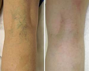 Laser Treatments UKBefore & After Laser Vein Treatment ...