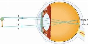 What Is The Type Of The Image That Is Formed On The Retina