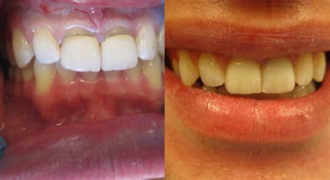 gallery cns dental