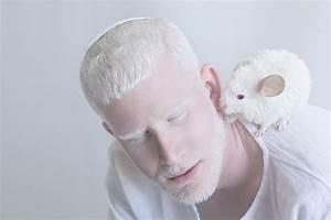 Unique Beauty Of Albino People