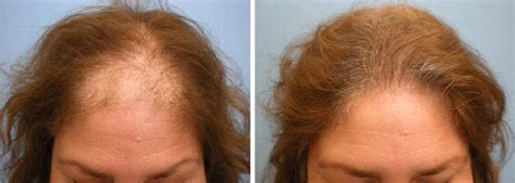Five Easy Steps to Female Hair Loss Management l Parsa Mohebi