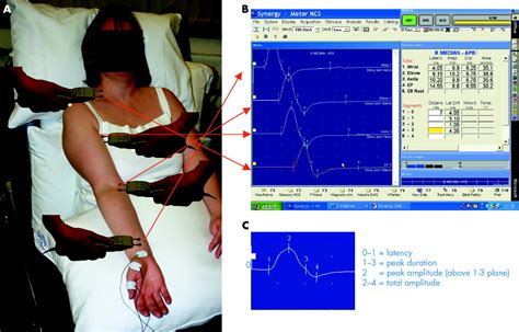 Nerve conduction studies: essentials and pitfalls in