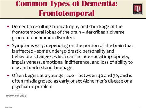 Alzheimer's Update Powerpoint Presentation