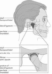 Jaw Joint Problems
