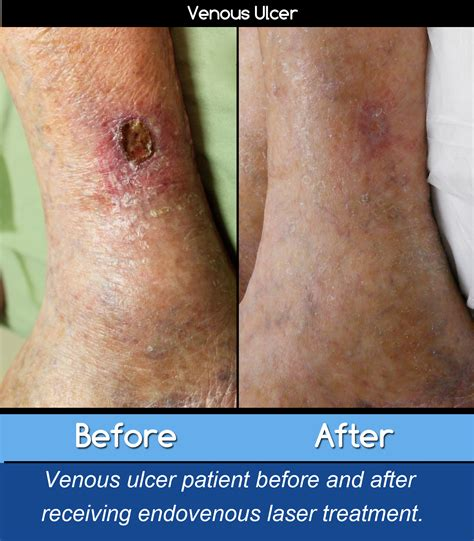 Leg Ulcers And Vein Treatment The Kimmel Institute