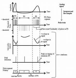 Proposed Qrs Detection Block Diagram