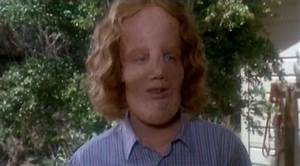 Best Actor: Alternate Best Actor 1985: Eric Stoltz in Mask