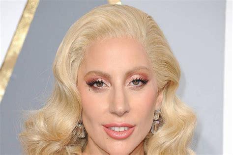 Lady Gaga, i due bulldog sono stati ritrovati e stanno bene