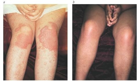 light therapy for psoriasis psoriasis part 3