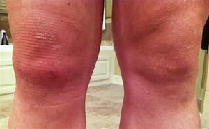 Swollen bump under knee cap - orthopedics - medHelp