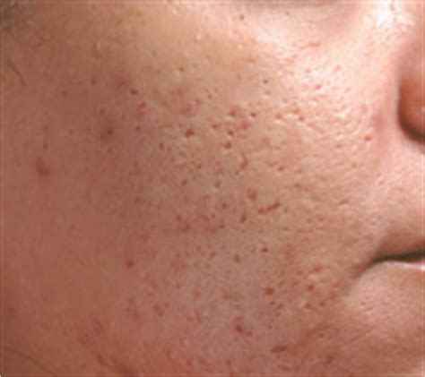 solutions  acne  chickenpox scars beverly hills