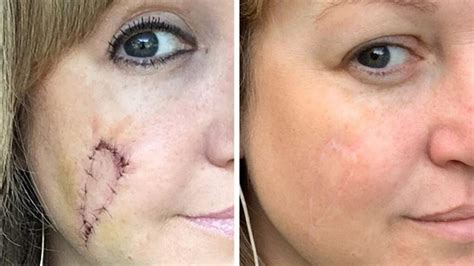 indiana woman left  skin cancer hole  face regrets