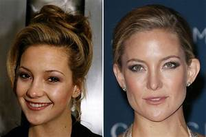 Celebrity Nose Jobs - Before & After - Mirror Online