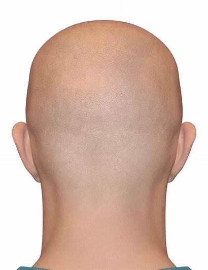 Bald Head Hair Clipart Almost Heads Logos