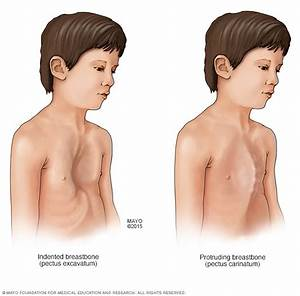 Facial features of patients with Marfan Syndrom