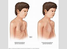 Symptoms and causes Marfan syndrome Mayo Clinic