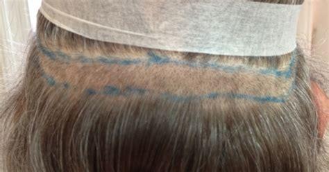 greffes cheveux par bandelette  paris dr santini