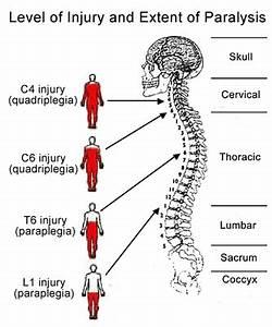 Stroke treatment in Delhi NCR, paraplegia paralysis ...