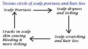 Scalp Psoriasis And Hair Loss