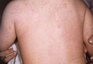 Eczema, Dermatitis | Symptoms and Treatment | Essential Baby