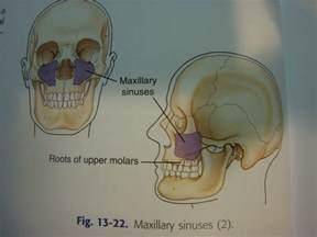 Maxillary Sinus Bone Anatomy
