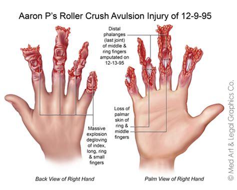 crush avulsion injury  toe transfer surgery
