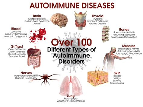 5 Steps To Heal Autoimmune Disease Drjockerscom