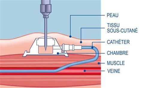 piquer sur chambre implantable chimiothérapie une chambre implantable va m 39 être posée