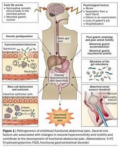 Abdominal Pain Location Chart