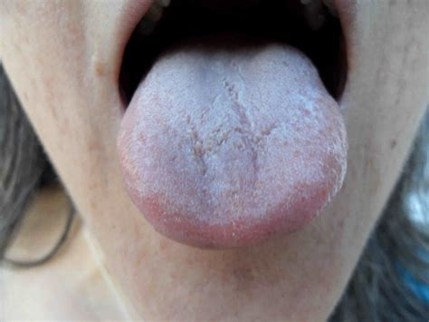 in tongue tongue wendy stedeford s acupuncture and traditional chinese medicine blog