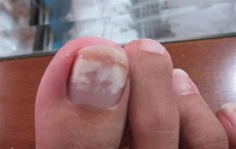 Symptoms, Causes, Pictures And Treatment
