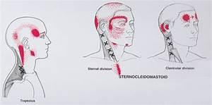 Hoofdpijn in achterhoofd en nek