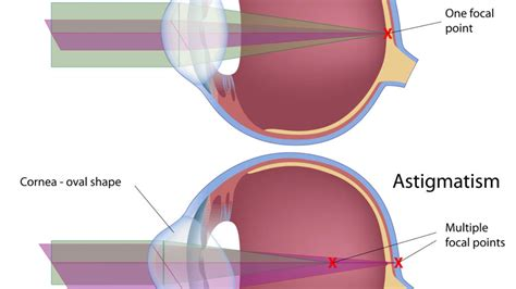 Eye surgery to be done for correction of severe refractive errors. Astigmatisme Lasik - Astigmatism Glaucoma Swollen Eyes Disease