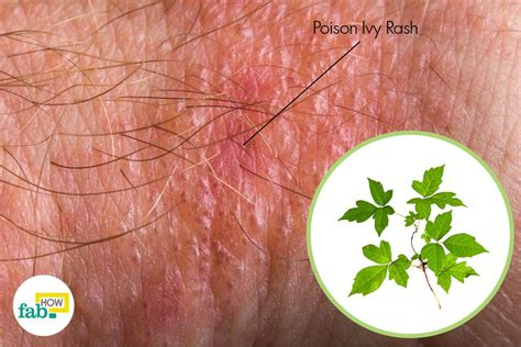 poison rash how to get rid of poison ivy rash in one day fab how