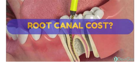 root canal cost ways   discount