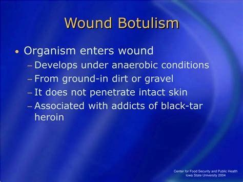 Ppt Botulism Powerpoint Presentation Id161801