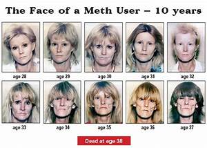 Meth user for 10 years | Drugs -- Before and After ...